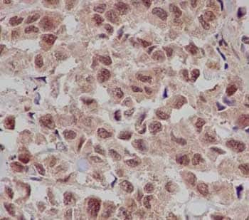 Immunohistochemistry (Formalin/PFA-fixed paraffin-embedded sections) - Anti-Gankyrin antibody [EPR14455] (ab182576)