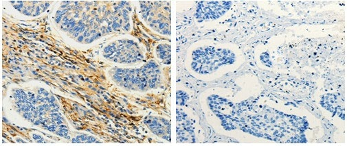 Immunohistochemistry (Formalin/PFA-fixed paraffin-embedded sections) - Anti-CAP1 antibody (ab182604)