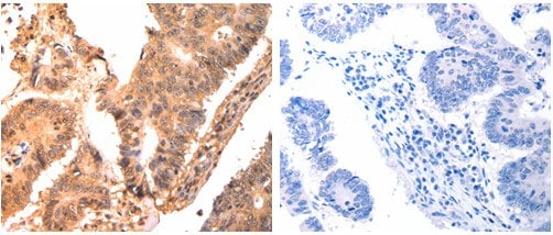Immunohistochemistry (Formalin/PFA-fixed paraffin-embedded sections) - Anti-Calpain small subunit 1 antibody (ab182607)