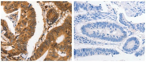 Immunohistochemistry (Formalin/PFA-fixed paraffin-embedded sections) - Anti-Carbonic anhydrase 2/CA2 antibody (ab182611)