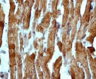 Immunohistochemistry (Formalin/PFA-fixed paraffin-embedded sections) - Anti-Cardiac Troponin I antibody [EP1106Y] - BSA and Azide free (ab182616)