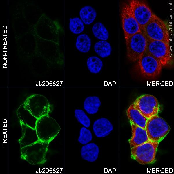 Immunocytochemistry - Anti-EGFR (phospho Y1068) antibody [EP774Y] - BSA and Azide free (ab182618)