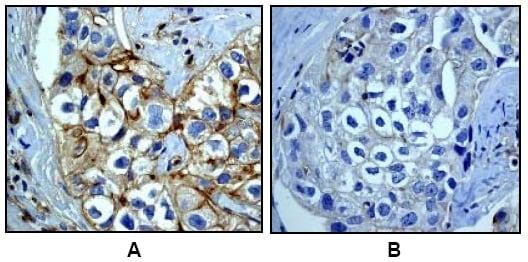 Immunohistochemistry (Formalin/PFA-fixed paraffin-embedded sections) - Anti-EGFR (phospho Y1068) antibody [EP774Y] - BSA and Azide free (ab182618)