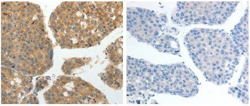 Immunohistochemistry (Formalin/PFA-fixed paraffin-embedded sections) - Anti-GRK4 antibody (ab182635)