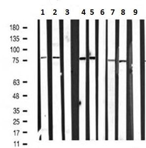 Western blot - Anti-PI 3 Kinase p85 alpha (phospho Y607) antibody (ab182651)