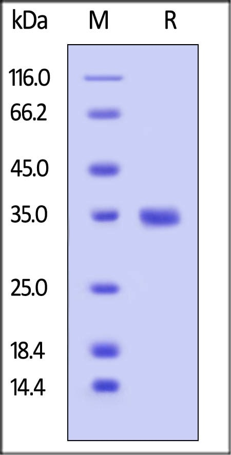 SDS-PAGE - Recombinant human IgG2 protein (ab182668)