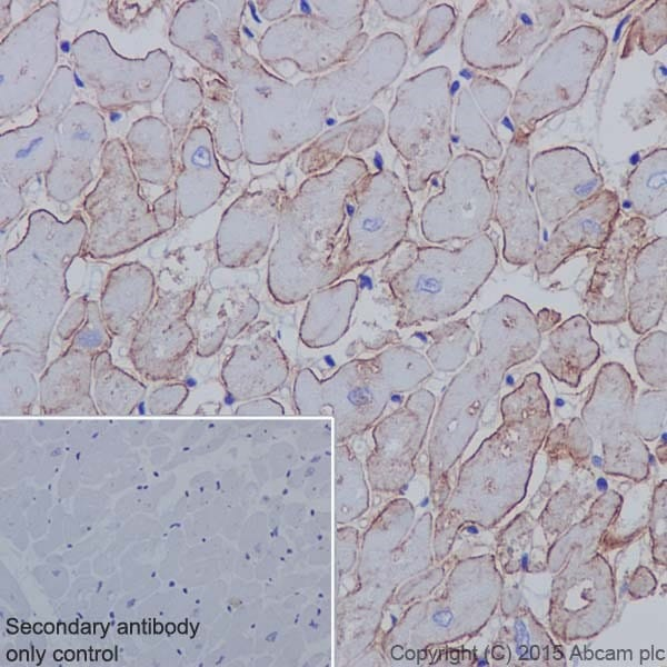 Immunohistochemistry (Formalin/PFA-fixed paraffin-embedded sections) - Anti-Caveolin-3 antibody [EPR18975] (ab182739)