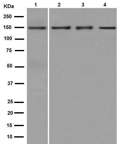 Western blot - Anti-Collagen VI antibody [EPR17072] (ab182744)
