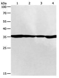 Western blot - Anti-PSMD14 antibody (ab182762)