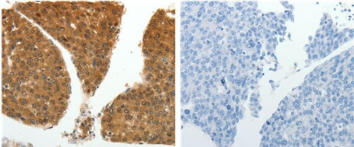 Immunohistochemistry (Formalin/PFA-fixed paraffin-embedded sections) - Anti-PSMD14 antibody (ab182762)
