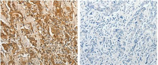 Immunohistochemistry (Formalin/PFA-fixed paraffin-embedded sections) - Anti-Tissue Factor antibody (ab182783)