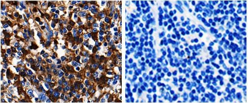 Immunohistochemistry (Formalin/PFA-fixed paraffin-embedded sections) - Anti-ADAMTS5 antibody (ab182795)