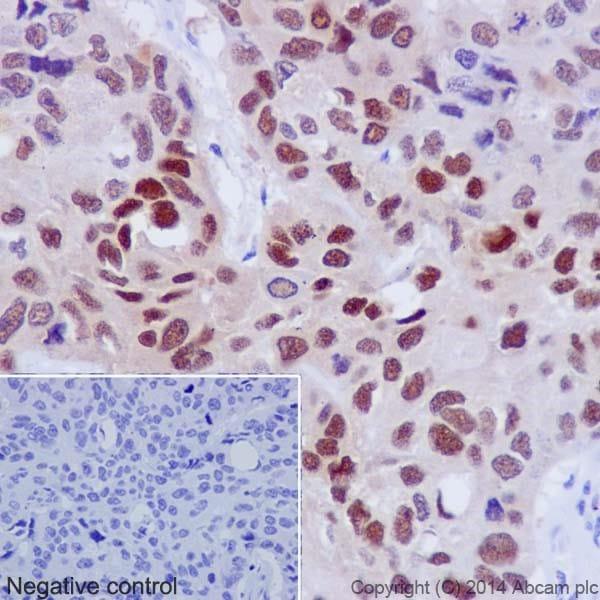 Immunohistochemistry (Formalin/PFA-fixed paraffin-embedded sections) - Anti-Hsp70 antibody [EPR17677] (ab182844)