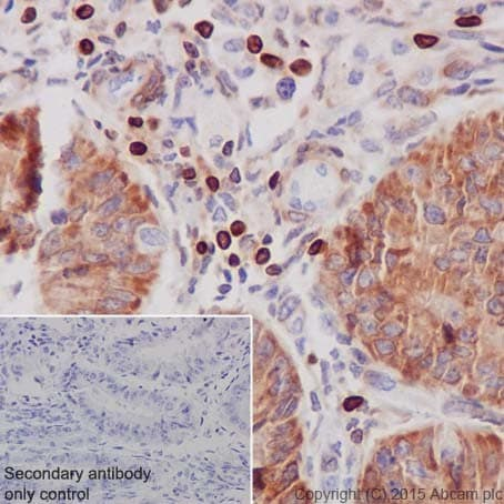 Immunohistochemistry (Formalin/PFA-fixed paraffin-embedded sections) - Anti-Bcl-2 antibody [EPR17509] (ab182858)