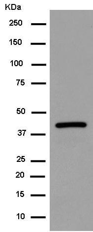 Western blot - Anti-Centaurin alpha 1 antibody [EPR14285] (ab183038)