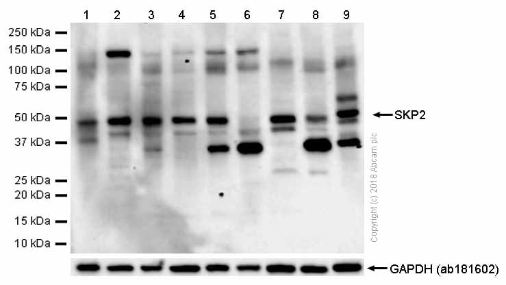 Western blot - Anti-SKP2 antibody [EPR3305(2)] (ab183039)