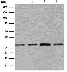 Western blot - Anti-CLIC4 antibody [EPR14253] (ab183043)