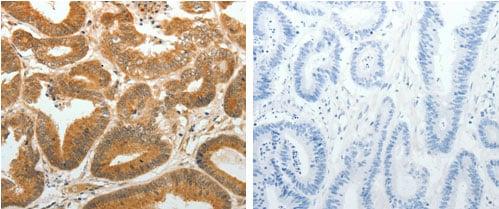 Immunohistochemistry (Formalin/PFA-fixed paraffin-embedded sections) - Anti-AKR1C1 antibody - C-terminal (ab183078)
