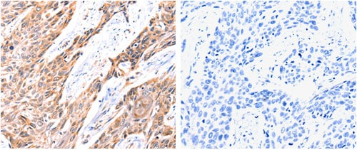 Immunohistochemistry (Formalin/PFA-fixed paraffin-embedded sections) - Anti-GnRHR antibody (ab183079)