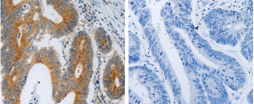 Immunohistochemistry (Formalin/PFA-fixed paraffin-embedded sections) - Anti-PAR1/Thrombin Receptor antibody (ab183083)