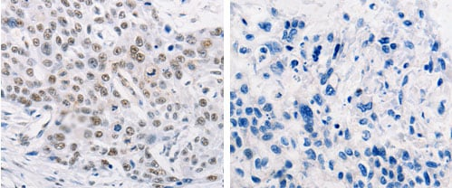 Immunohistochemistry (Formalin/PFA-fixed paraffin-embedded sections) - Anti-MURF1 antibody (ab183094)