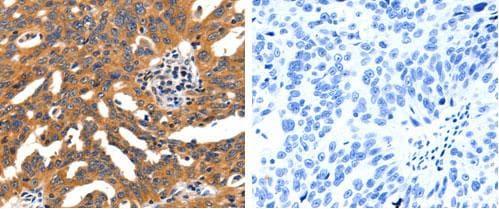 Immunohistochemistry (Formalin/PFA-fixed paraffin-embedded sections) - Anti-Nicotinic Acetylcholine Receptor alpha 3/CHRNA3 antibody (ab183097)