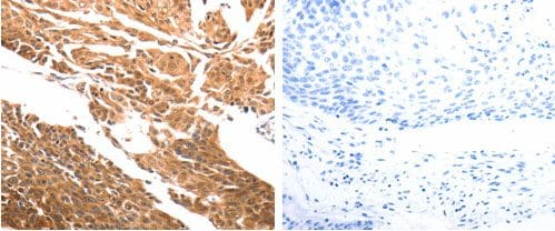 Immunohistochemistry (Formalin/PFA-fixed paraffin-embedded sections) - Anti-SLC39A6/ZIP-6 antibody (ab183101)