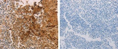 Immunohistochemistry (Formalin/PFA-fixed paraffin-embedded sections) - Anti-PACAP receptor/ADCYAP1R1 antibody (ab183103)