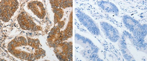 Immunohistochemistry (Formalin/PFA-fixed paraffin-embedded sections) - Anti-PIBF antibody - C-terminal (ab183107)