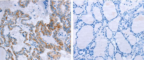 Immunohistochemistry (Formalin/PFA-fixed paraffin-embedded sections) - Anti-CCK2-R antibody (ab183124)
