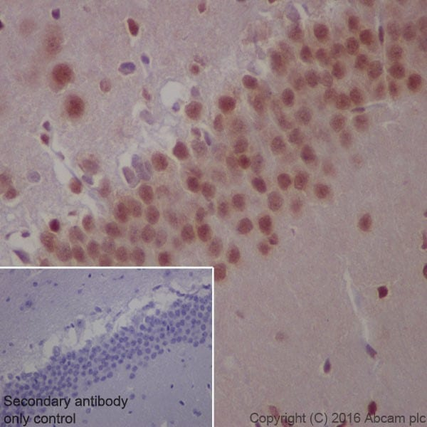Immunohistochemistry (Formalin/PFA-fixed paraffin-embedded sections) - Anti-Glucocorticoid Receptor antibody [EPR19621] (ab183127)