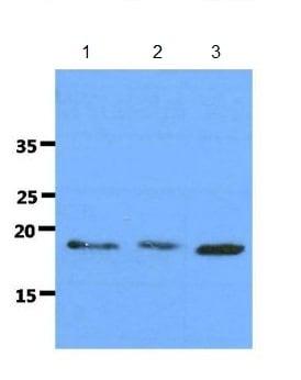 Western blot - Anti-DNAL1 [AT29E4] antibody (ab183206)