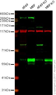 Western blot - Anti-LRRK2 antibody [MJFF3 (c69-6)] - BSA and Azide free (ab183216)