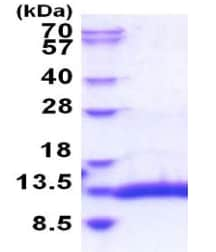 SDS-PAGE - Recombinant Human Sepw1 protein (ab183236)