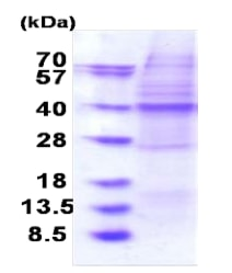 SDS-PAGE - Recombinant Human OSGEP protein (denatured) (ab183238)