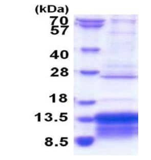 SDS-PAGE - Recombinant Human MUSTN1 protein (ab183251)