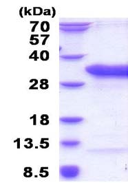 SDS-PAGE - Recombinant Human TSR2 protein (ab183259)