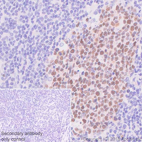 Immunohistochemistry (Formalin/PFA-fixed paraffin-embedded sections) - Anti-Bcl6 antibody [SP155] - C-terminal (ab183308)