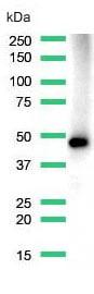 Western blot - Anti-MAGEA1 antibody [SP194] - C-terminal (ab183309)