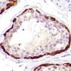 Immunohistochemistry (Formalin/PFA-fixed paraffin-embedded sections) - Anti-MAGEA1 antibody [SP194] - C-terminal (ab183309)
