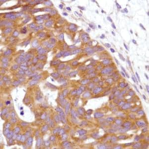 Immunohistochemistry (Formalin/PFA-fixed paraffin-embedded sections) - Anti-C19orf2 antibody [SP215] - C-terminal (ab183310)