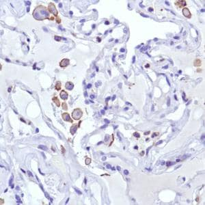 Immunohistochemistry (Formalin/PFA-fixed paraffin-embedded sections) - Anti-MCSF Receptor antibody [SP211] (ab183316)