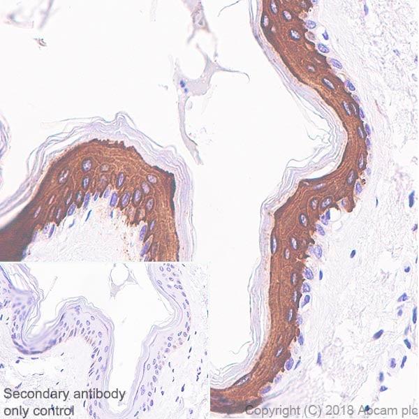 Immunohistochemistry (Formalin/PFA-fixed paraffin-embedded sections) - Anti-Cytokeratin 10 antibody [SP99] - C-terminal (ab183317)