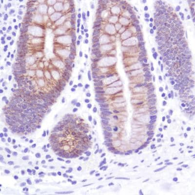 Immunohistochemistry (Formalin/PFA-fixed paraffin-embedded sections) - Anti-LI Cadherin antibody [SP183] - C-terminal (ab183318)