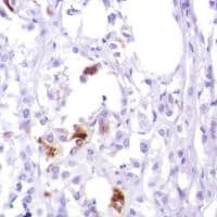 Immunohistochemistry (Formalin/PFA-fixed paraffin-embedded sections) - Anti-GCDFP 15 antibody [SP185] - C-terminal (ab183321)