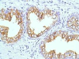 Immunohistochemistry (Formalin/PFA-fixed paraffin-embedded sections) - Anti-CD38 antibody [SP149] - C-terminal (ab183326)