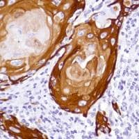 Immunohistochemistry (Formalin/PFA-fixed paraffin-embedded sections) - Anti-Cytokeratin 5 antibody [SP178] (ab183336)