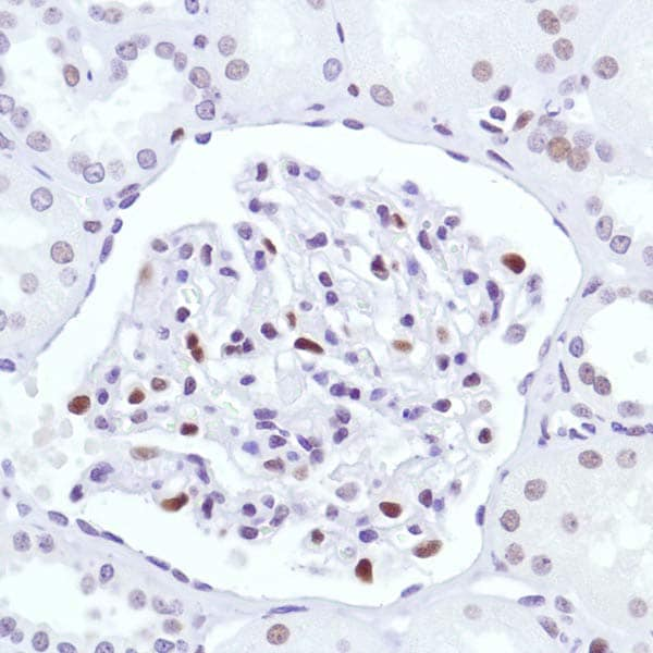 Immunohistochemistry (Formalin/PFA-fixed paraffin-embedded sections) - Anti-Cyclin D3/CCND3 antibody [SP207] (ab183338)