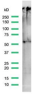 Western blot - Anti-TdT antibody [SP150] (ab183341)