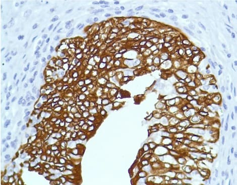 Immunohistochemistry (Formalin/PFA-fixed paraffin-embedded sections) - Anti-Cytokeratin 7 antibody [SP52] (ab183344)